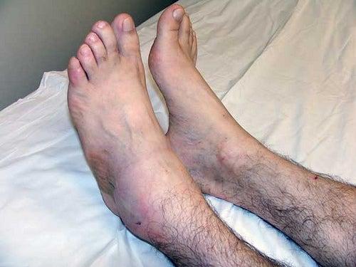 tornozelos3