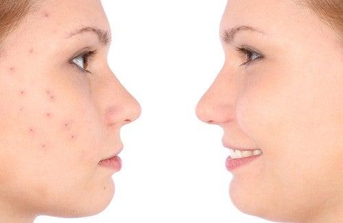 Tratamento caseiro para a acne