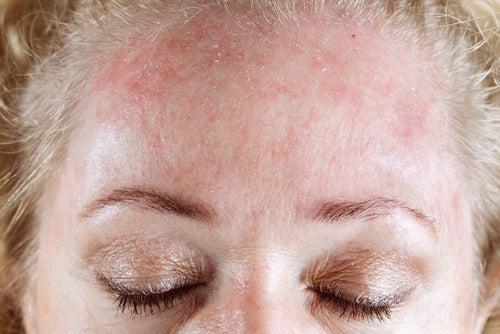 Sintomas de alergia na pele