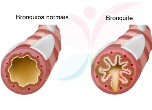 O tratamento de bronquite pode incluir o consumo de alho em jejum