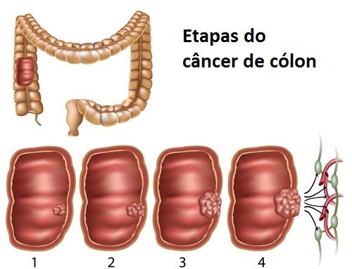 cancer colon cec simptome