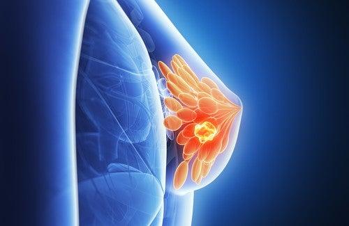 O câncer de mama pode ser previsto?