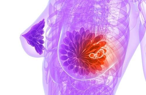 Sementes de linhaça para evitar o câncer de mama
