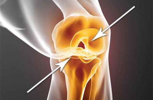 Como reconstituir rapidamente as cartilagens desgastadas?