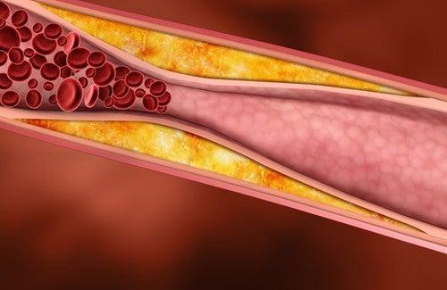 Sucos saudáveis para reduzir o colesterol e os triglicerídeos