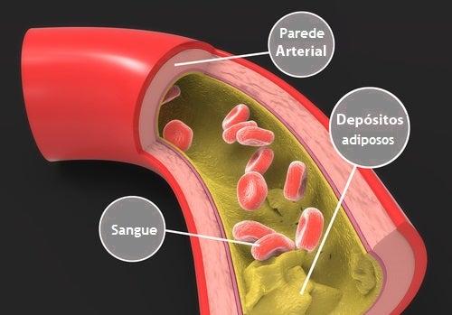 Amêndoas na redução do colesterol