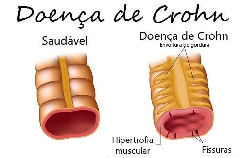 Doença de Crohn: sintomas e tratamento