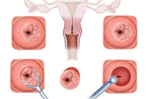 Sintomas e tratamento para a erosão cervical