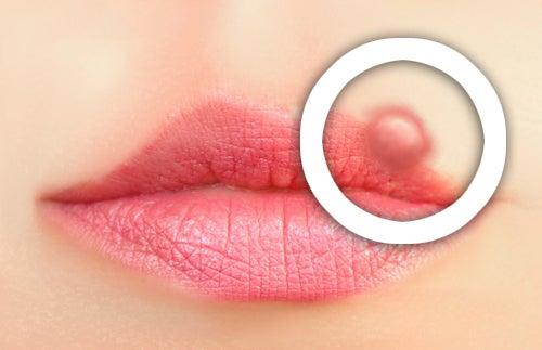 Como prevenir o herpes labial?