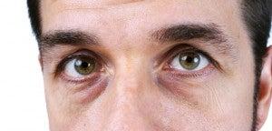 Olhos com olheiras escuras