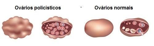 Ovarios-poliquisticos_2