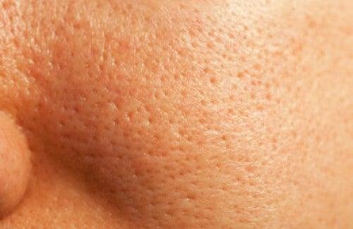 Tratamento natural dos poros dilatados