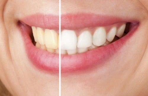 Como clarear os dentes naturalmente?