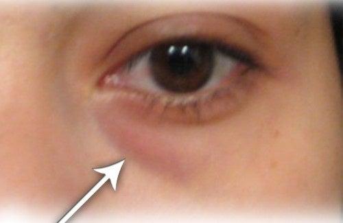 Tratamentos caseiros para eliminar as olheiras