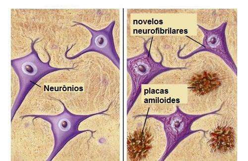 Alimentos que nos protegem do Alzheimer