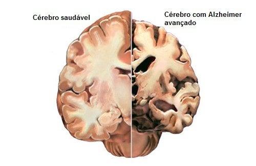 Como detectar a tempo os primeiros sintomas do Alzheimer?