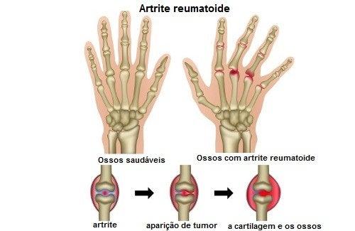 Quais são os gatilhos da artrite reumatoide?
