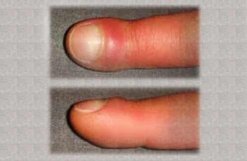Por que os dedos das mãos incham?