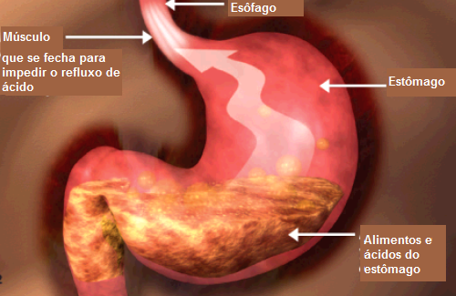 Dieta adequada para pessoas com refluxo gastroesofágico