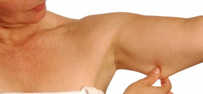 5 exercícios para reduzir gordura e tonificar seus braços