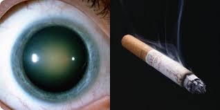 Cigarro colabora para o desenvolvimento da catarata