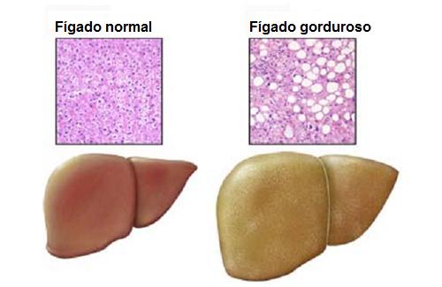 Fígado gorduroso: alimentos que devem ser evitados