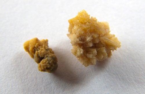 Pedras-dos-rins