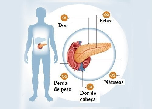 6 sintomas de um problema no pâncreas