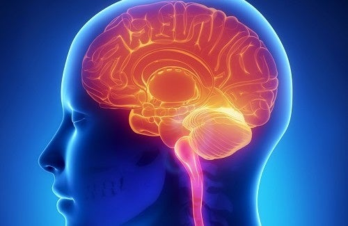 Tipos de derrame cerebral