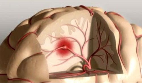 Formas de prevenir um derrame cerebral