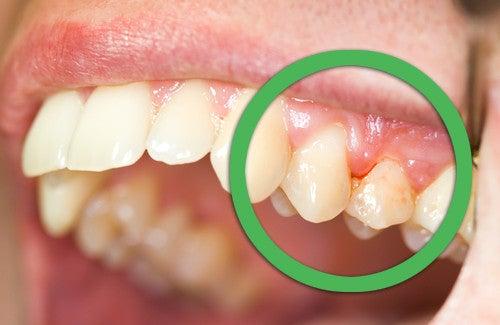 Remédios naturais para o sangramento da gengiva ou dentes soltos