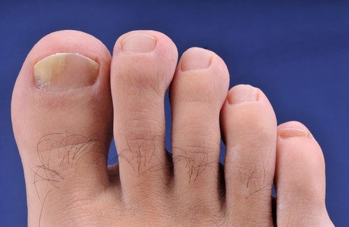 Remédios caseiros para a onicomicose (mãos e pés)
