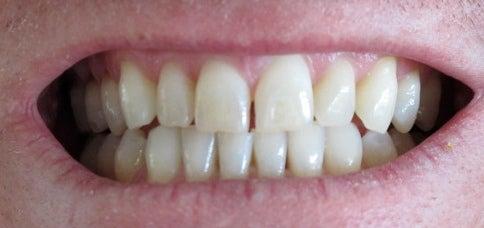 Elementos que devemos evitar para clarear os dentes