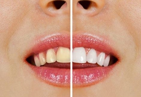 Como Clarear Os Dentes Naturalmente Melhor Com Saude