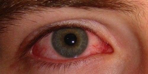 Como tratar os olhos secos e vermelhos