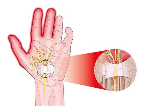 síndrome do túnel do carpo é uma das causas da dormência das mãos