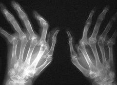 Artritis-500x325