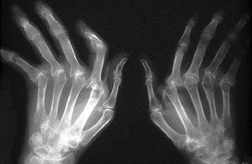 Como tratar a artrite reumatoide?