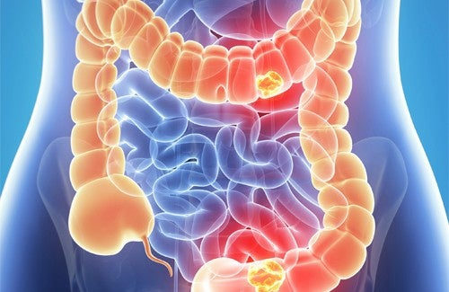 CancerColon1-500x325