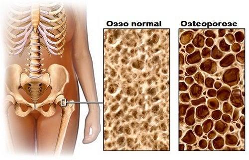 Dieta para evitar a osteoporose