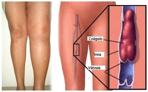 O que é uma trombose e como preveni-la?