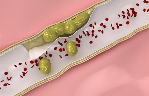 Remédios naturais para limpar as artérias