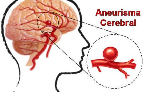 O que são e como prevenir os aneurismas cerebrais?