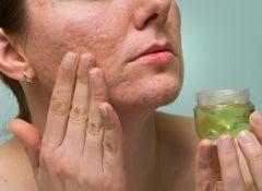 Cicatrizes: soluções caseiras para atenuá-las naturalmente