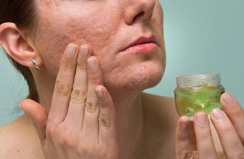 Como reduzir as marcas de acne com remédios naturais