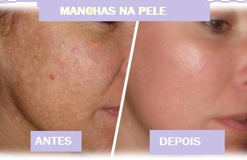 Água oxigenada pode eliminar manchas na pele.