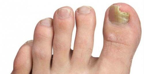 Conselhos para prevenir os fungos nos pés