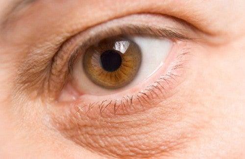 Como clarear ou eliminar as olheiras?