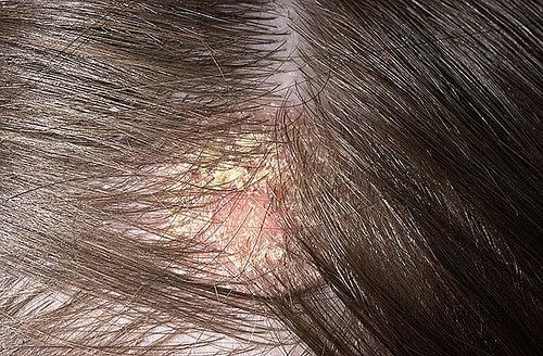 Couro cabelo precisando de tratamento para a dermatite seborreica