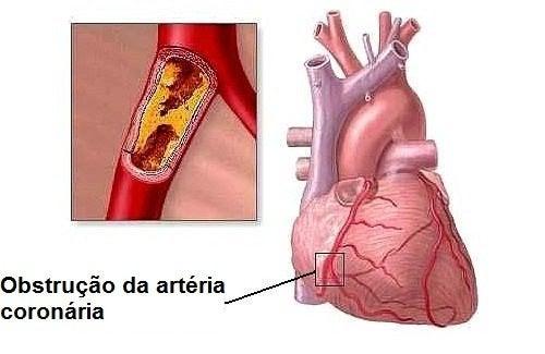 8 hábitos cotidianos que podem causar problemas cardíacos